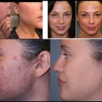 microderm glo before and after