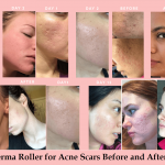 derma-roller-for-acne-scars-before-and-after-1